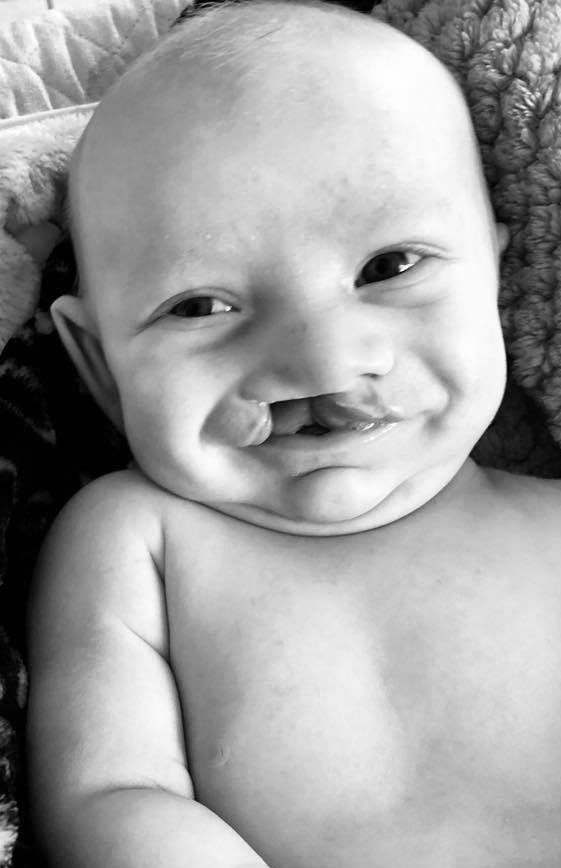 Baby with cleft